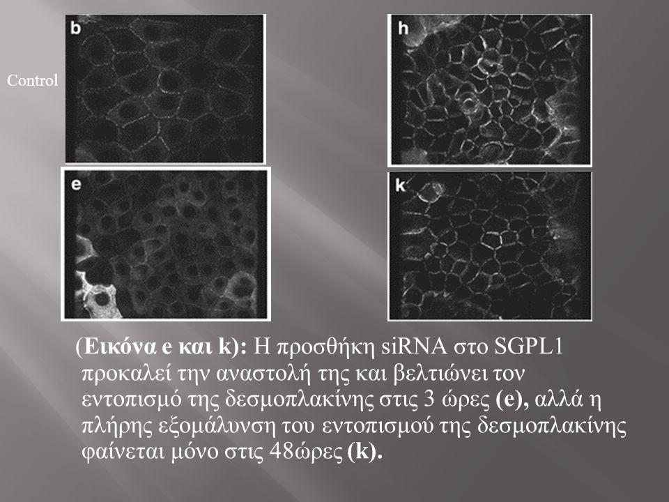 (Εικόνα e και k): Η προσθήκη siRNA στο SGPL1 προκαλεί την αναστολή της και βελτιώνει τον εντοπισμό της δεσμοπλακίνης στις 3 ώρες (e), αλλά η πλήρης εξομάλυνση του εντοπισμού της δεσμοπλακίνης φαίνεται μόνο στις 48ώρες (k).