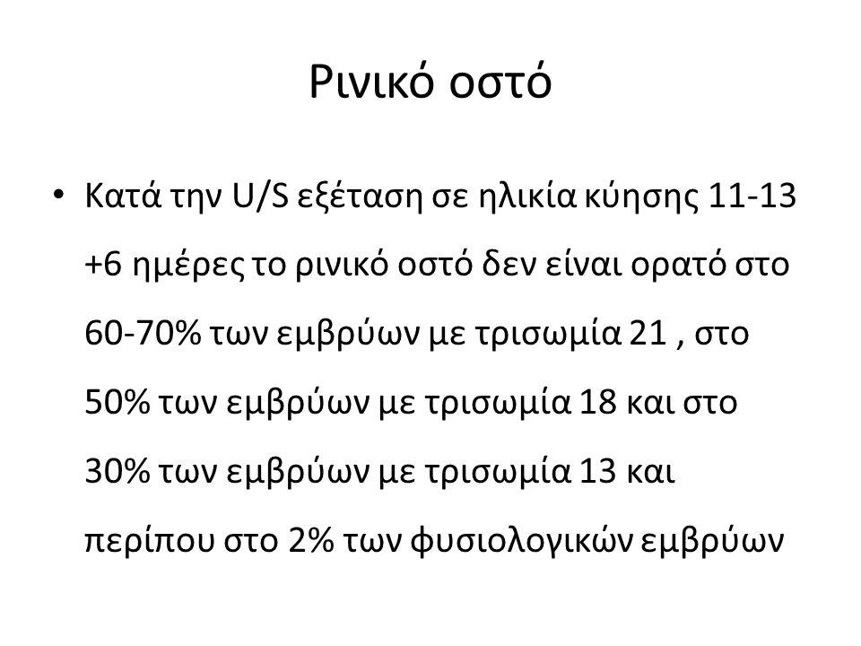 Ρινικό οστό Κατά την U/S εξέταση σε ηλικία κύησης 11-13 +6 ημέρες το ρινικό οστό δεν είναι ορατό στο 60-70% των εμβρύων με τρισωμία 21, στο 50% των εμ