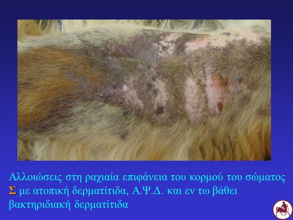 Σ Αλλοιώσεις στη ραχιαία επιφάνεια του κορμού του σώματος Σ με ατοπική δερματίτιδα, Α.Ψ.Δ. και εν τω βάθει βακτηριδιακή δερματίτιδα