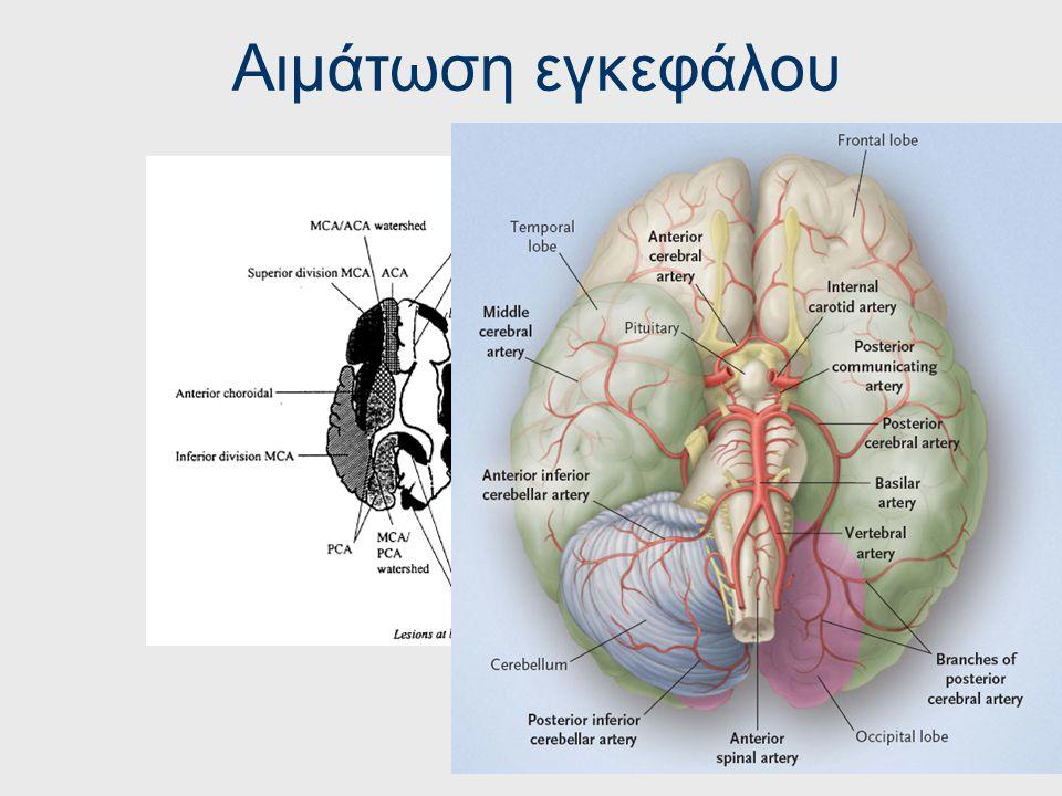 RIND Riversible Ischemic Neurologic Deficit Παρατεταμένα εγκεφαλικά επεισόδια που οδηγούν σε πλήρη ίαση. Δηλαδή αν τα συμπτώματα διαρκούν για πάνω από