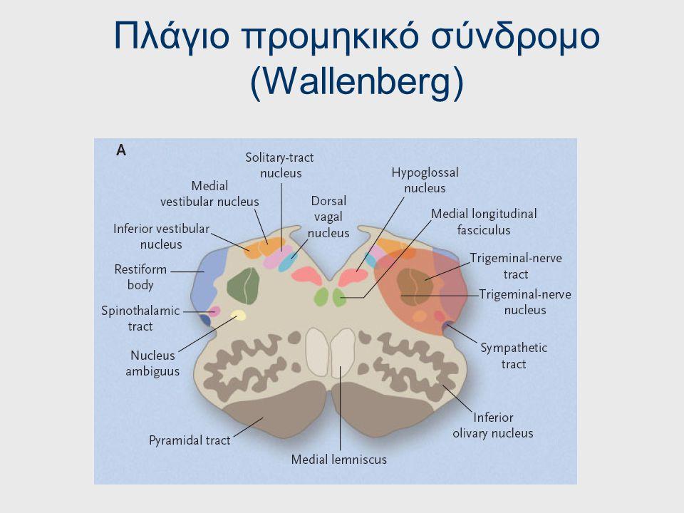 Ισχαιμικά έμφρακτα προμήκους Πλάγιο προμηκικό σύνδρομο (Wallenberg)