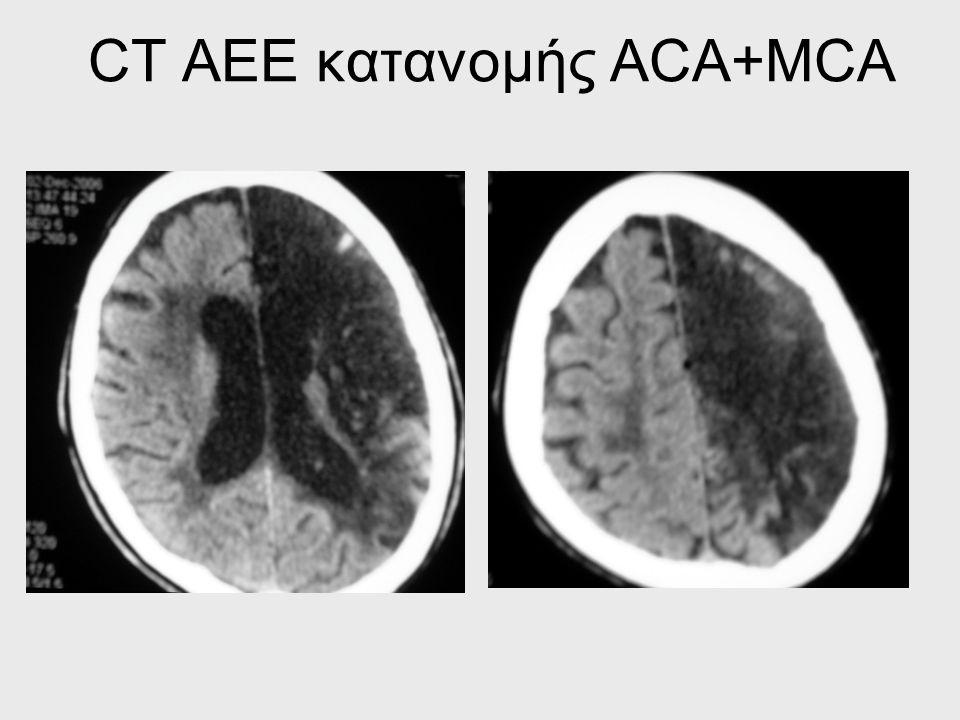 ΔΙΑΦΟΡΟΔΙΑΓΝΩΣΗ Μετακριτική παράλυση του Todd Υπερτασική εγκεφαλοπάθεια Επιπλεγμένη ημικρανία Τοξική/μεταβολική διαταραχή(εγκεφαλοπάθεια) Μηνιγγοεγκεφ