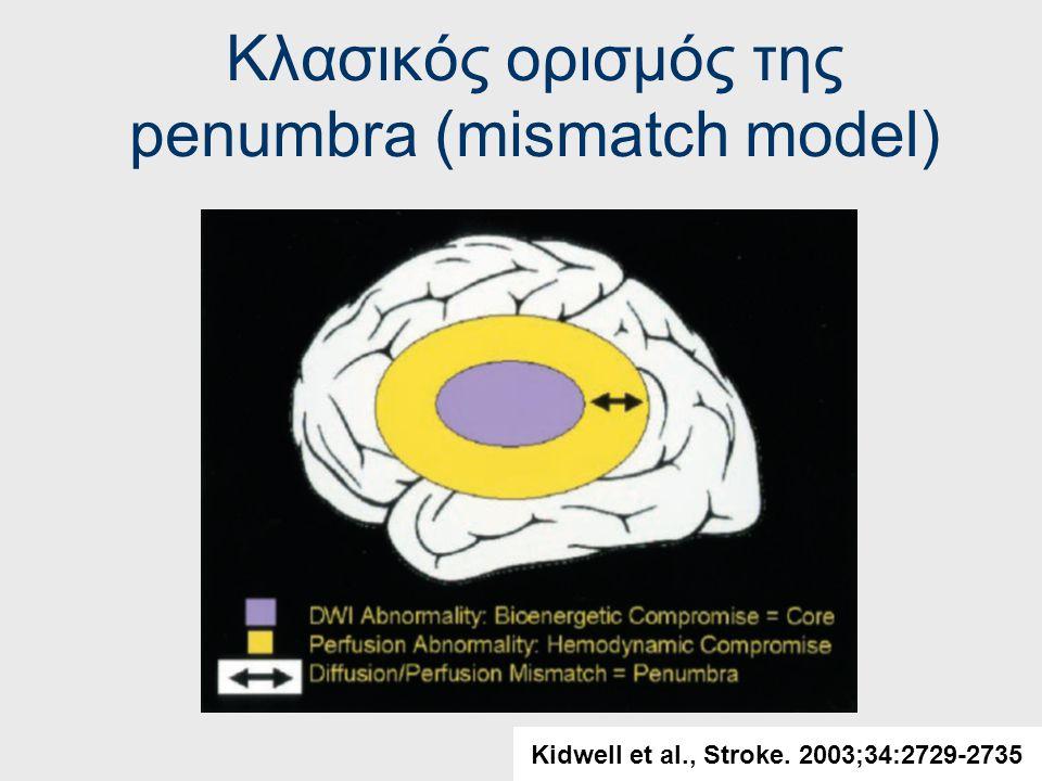 Εγκεφαλική αιματική ροή και Όρια εγκεφαλικής αιματικής ροής (κλασική γνώση) Καλοήθης ολιγαιμία (benign oligemia): >17-40 mL /100 g per minute Penumbra