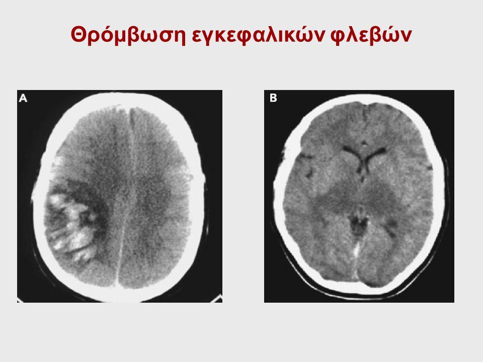 Θρόμβωση εγκεφαλικών φλεβών