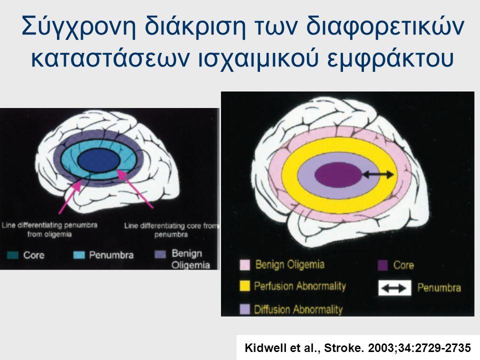 Κλασικός ορισμός της penumbra (mismatch model) Kidwell et al., Stroke. 2003;34:2729-2735