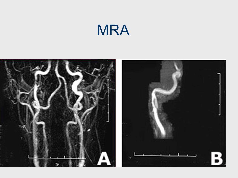 Διαχωρισμός έσω καρωτίδας Αυτόματος (στο 20% διαταραχή του κολλαγόνου, στο 15% ινομυώδη δυσπλασία) Τραυματικός Precipitating events: υπερέκταση ή στρο