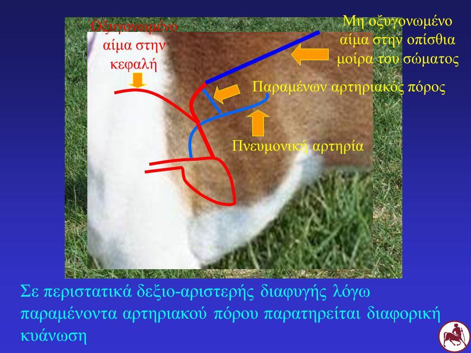 Σε περιστατικά δεξιο-αριστερής διαφυγής λόγω παραμένοντα αρτηριακού πόρου παρατηρείται διαφορική κυάνωση Πνευμονική αρτηρία Παραμένων αρτηριακός πόρος