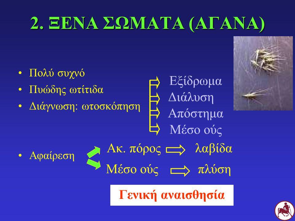 2. ΞΕΝΑ ΣΩΜΑΤΑ (ΑΓΑΝΑ) Πολύ συχνό Πυώδης ωτίτιδα Διάγνωση: ωτοσκόπηση Αφαίρεση Γενική αναισθησία Εξίδρωμα Διάλυση Απόστημα Μέσο ούς Ακ. πόροςλαβίδα Μέ