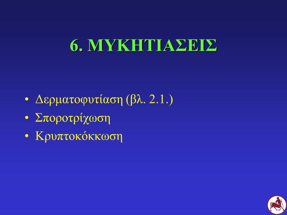 7. ΔΙΑΦΟΡΑ ΑΛΛΑ ΑΙΤΙΑ Ανασαρκοειδές των κυναρίων (βλ. 5.2.) Υπερπλαστική εωσινοφιλική ωτίτιδα