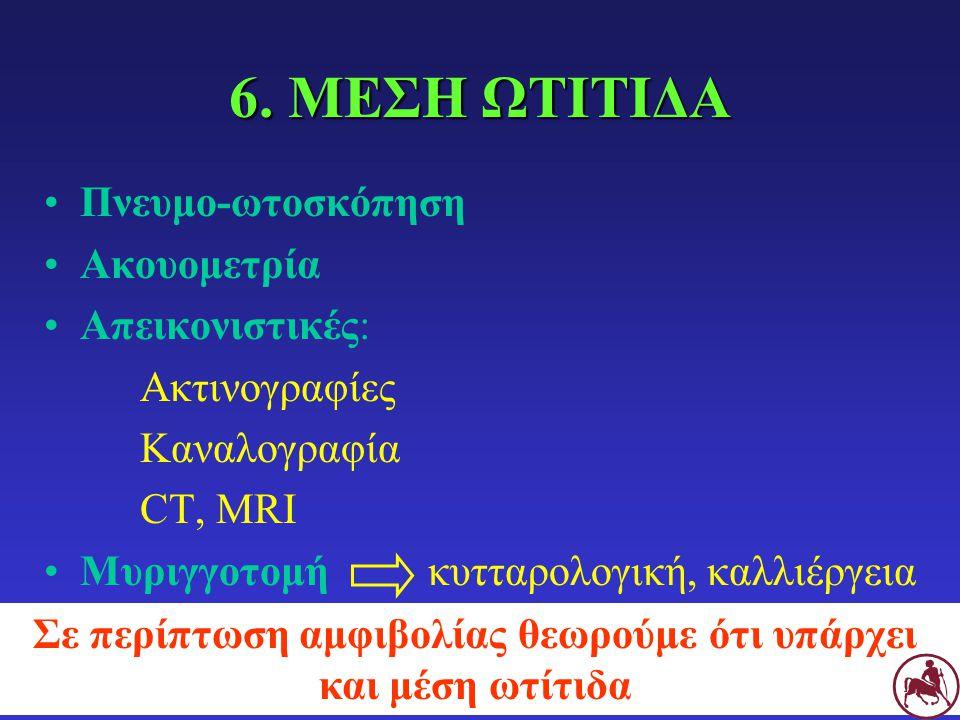 ΜΥΡΙΓΓΟΤΟΜΗ Ένδειξη: υποψία μέσης ωτίτιδας + ακέραιος τυμπ.