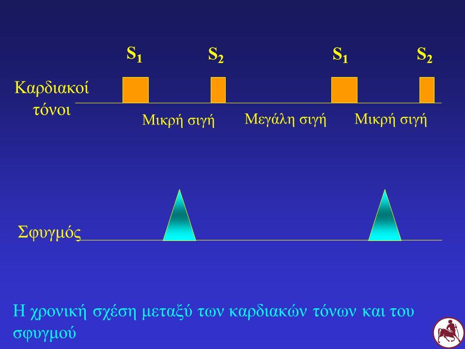 Η χρονική σχέση μεταξύ των καρδιακών τόνων και του σφυγμού Καρδιακοί τόνοι S1S1 S2S2 S1S1 S2S2 Μικρή σιγή Μεγάλη σιγήΜικρή σιγή Σφυγμός