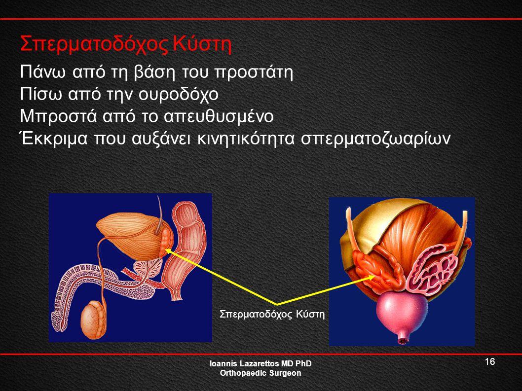 16 Σπερματοδόχος Κύστη Ioannis Lazarettos MD PhD Orthopaedic Surgeon Πάνω από τη βάση του προστάτη Πίσω από την ουροδόχο Μπροστά από το απευθυσμένο Έκ