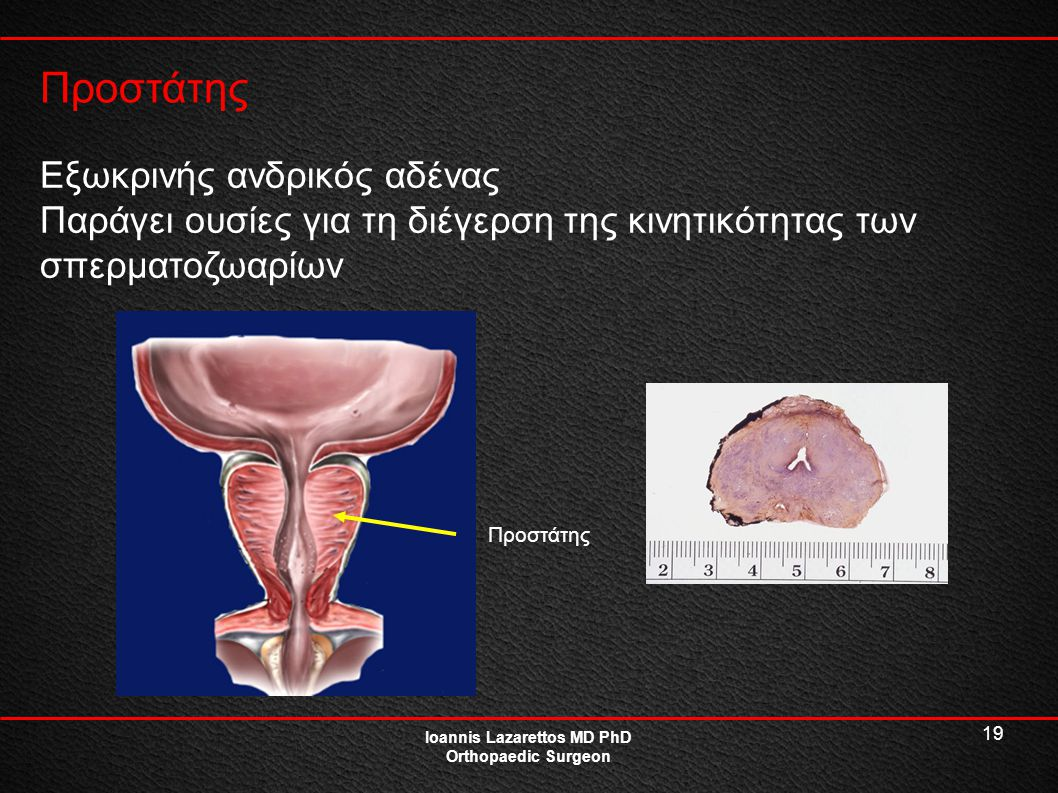 19 Προστάτης Ioannis Lazarettos MD PhD Orthopaedic Surgeon Εξωκρινής ανδρικός αδένας Παράγει ουσίες για τη διέγερση της κινητικότητας των σπερματοζωαρ