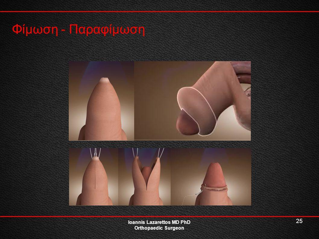 25 Φίμωση - Παραφίμωση Ioannis Lazarettos MD PhD Orthopaedic Surgeon