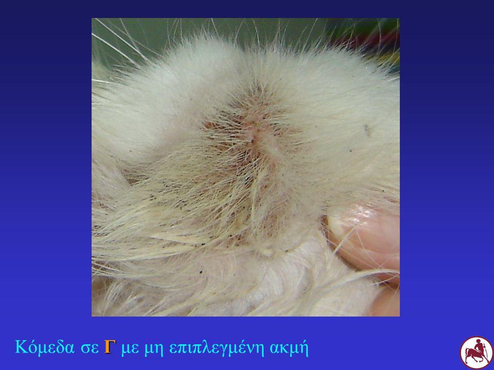 ΘΕΡΑΠΕΙΑ Κούρεμα Θερμά επιθέματα Καθαρισμός με αλκοόλη ή/και αντισμηγματορροϊκές ουσίες (υπεροξείδιο βενζοϋλίου shampoo ή gel 2,5%) SID ή EOD πιθ.