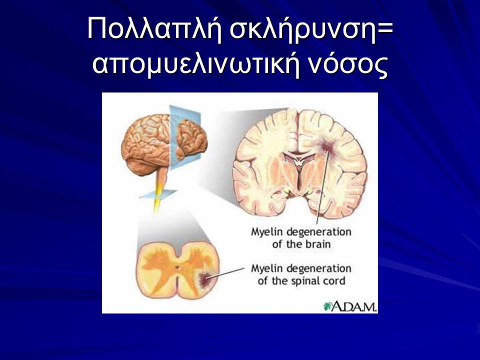 Mυελινοποίηση: Κάλυψη των νευραξόνων από μια λιπαρή, μονωτική ουσία (μυελίνη), που εξασφαλίζει την επιτυχή μετάδοση των ηλεκτρικών ώσεων Λευκή ουσία: Εγκάρσια τομή νευραξόνων περιτυλιγμένων με πολλαπλά στρώματα μυελίνης (Μ).