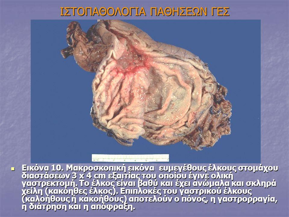 IΣΤΟΠΑΘΟΛΟΓΙΑ ΠΑΘΗΣΕΩΝ ΓΕΣ Εικόνα 10. Μακροσκοπική εικόνα ευμεγέθους έλκους στομάχου διαστάσεων 3 x 4 cm εξαιτίας του οποίου έγινε ολική γαστρεκτομή.