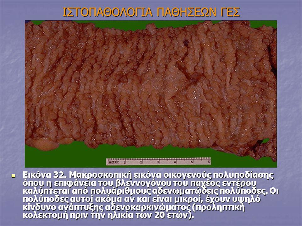 IΣΤΟΠΑΘΟΛΟΓΙΑ ΠΑΘΗΣΕΩΝ ΓΕΣ Εικόνα 32. Μακροσκοπική εικόνα οικογενούς πολυποδίασης όπου η επιφάνεια του βλεννογόνου του παχέος εντέρου καλύπτεται από π