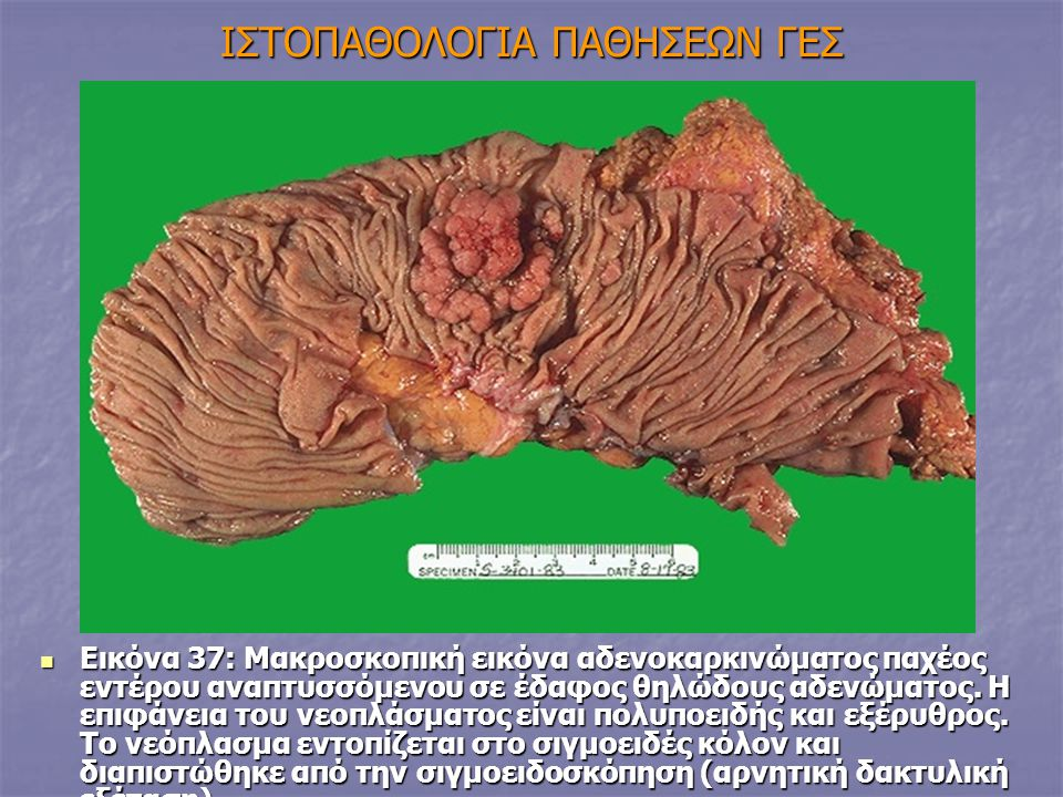 IΣΤΟΠΑΘΟΛΟΓΙΑ ΠΑΘΗΣΕΩΝ ΓΕΣ Eικόνα 37: Μακροσκοπική εικόνα αδενοκαρκινώματος παχέος εντέρου αναπτυσσόμενου σε έδαφος θηλώδους αδενώματος. Η επιφάνεια τ