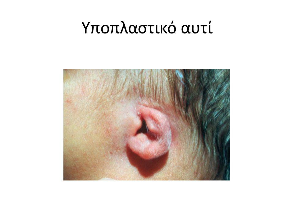 Υποπλαστικό αυτί