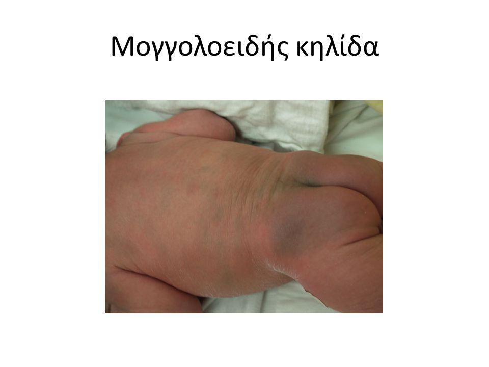 Ομφαλίτιδα