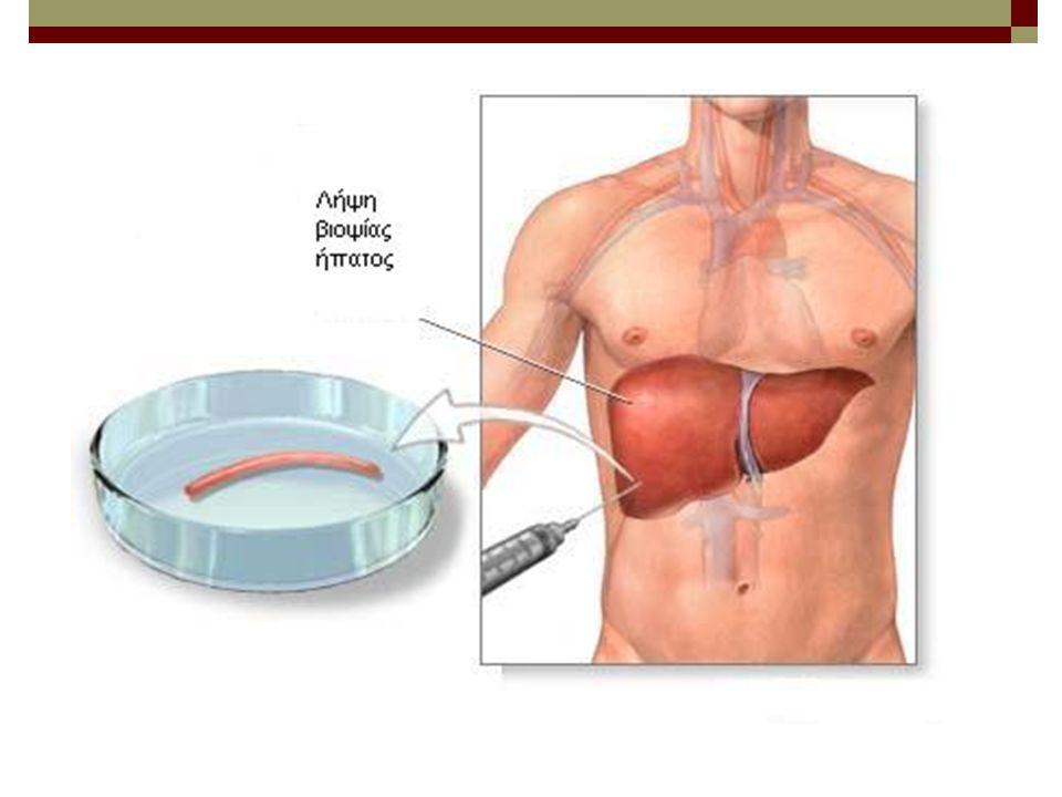 ΚΛΙΝΙΚΗ ΕΙΚΟΝΑ HBV ΚΛΙΝΙΚΗ ΕΙΚΟΝΑ HBV Διακρίνεται σε 2 μορφές: ΑΝΙΚΤΕΡΙΚΗ (συχνή) και ΙΚΤΕΡΙΚΗ Χρόνος επώασης: 30-180 ημέρες ΟΞΕΙΑ : Η ικτερική μορφή παρόμοια της Ηπατίτιδος Α και C.
