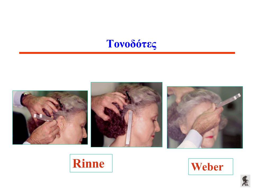Τονοδότες Weber Rinne