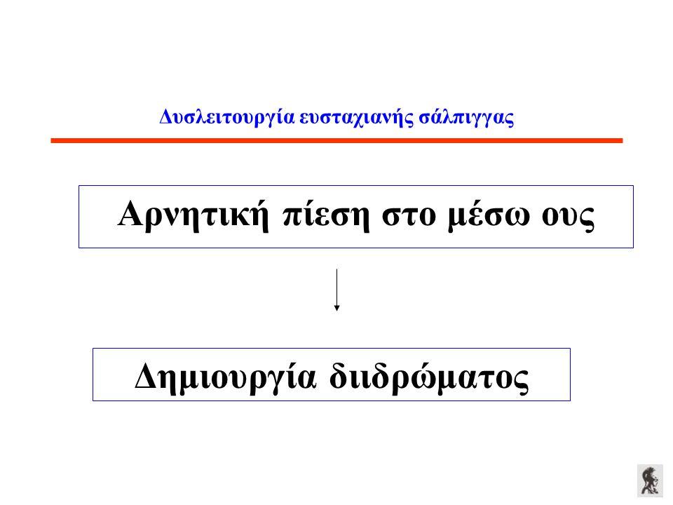 Δυσλειτουργία ευσταχιανής σάλπιγγας Αρνητική πίεση στο μέσω ους Δημιουργία διιδρώματος
