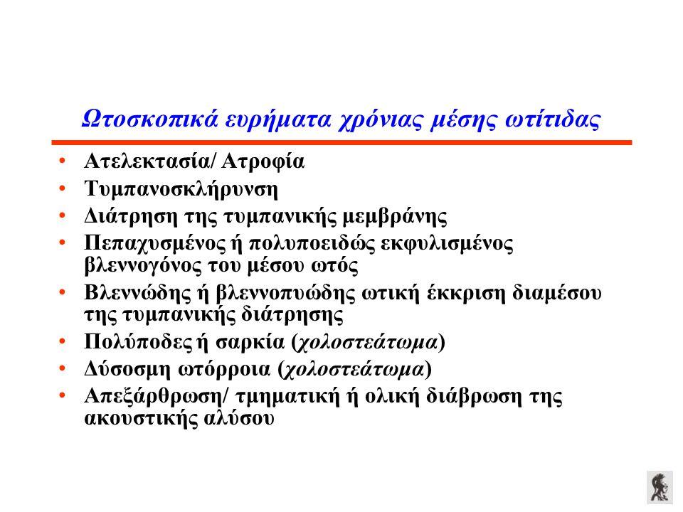 Ωτοσκοπικά ευρήματα χρόνιας μέσης ωτίτιδας Ατελεκτασία/ Ατροφία Τυμπανοσκλήρυνση Διάτρηση της τυμπανικής μεμβράνης Πεπαχυσμένος ή πολυποειδώς εκφυλισμ