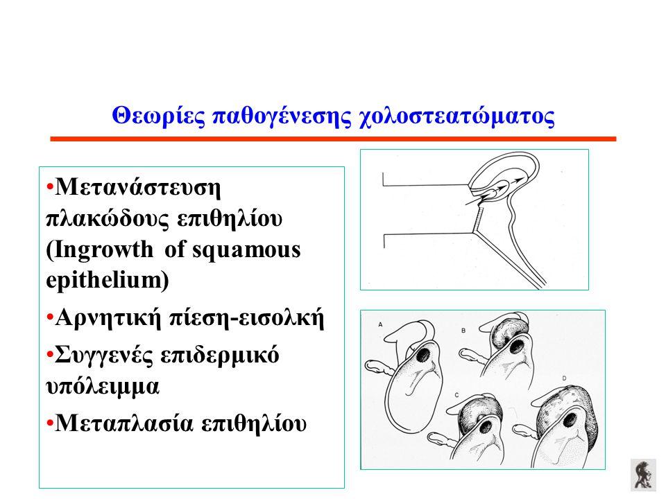 Θεωρίες παθογένεσης χολοστεατώματος Μετανάστευση πλακώδους επιθηλίου (Ingrowth of squamous epithelium) Αρνητική πίεση-εισολκή Συγγενές επιδερμικό υπόλ