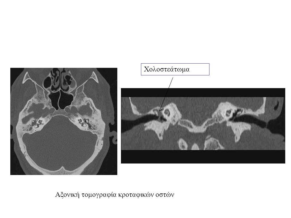 Αξονική τομογραφία κροταφικών οστών Χολοστεάτωμα
