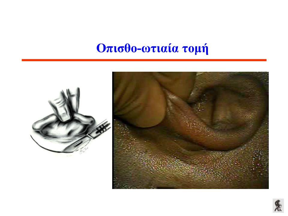 Οπισθο-ωτιαία τομή