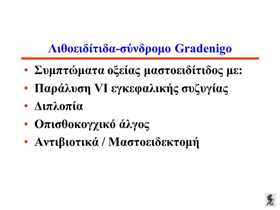 Λιθοειδίτιδα-σύνδρομο Gradenigo Συμπτώματα οξείας μαστοειδίτιδος με: Παράλυση VI εγκεφαλικής συζυγίας Διπλοπία Οπισθοκογχικό άλγος Αντιβιοτικά / Μαστο