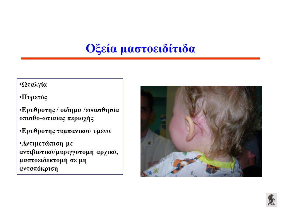 Οξεία μαστοειδίτιδα Ωταλγία Πυρετός Ερυθρότης / οίδημα /ευαισθησία οπισθο-ωτιαίας περιοχής Ερυθρότης τυμπανικού υμένα Αντιμετώπιση με αντιβιοτικά/μυρι