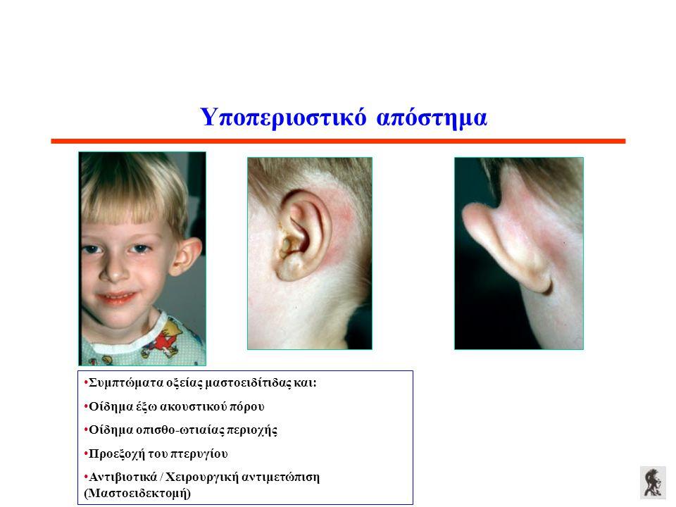 Υποπεριοστικό απόστημα Συμπτώματα οξείας μαστοειδίτιδας και: Οίδημα έξω ακουστικού πόρου Οίδημα οπισθο-ωτιαίας περιοχής Προεξοχή του πτερυγίου Αντιβιο
