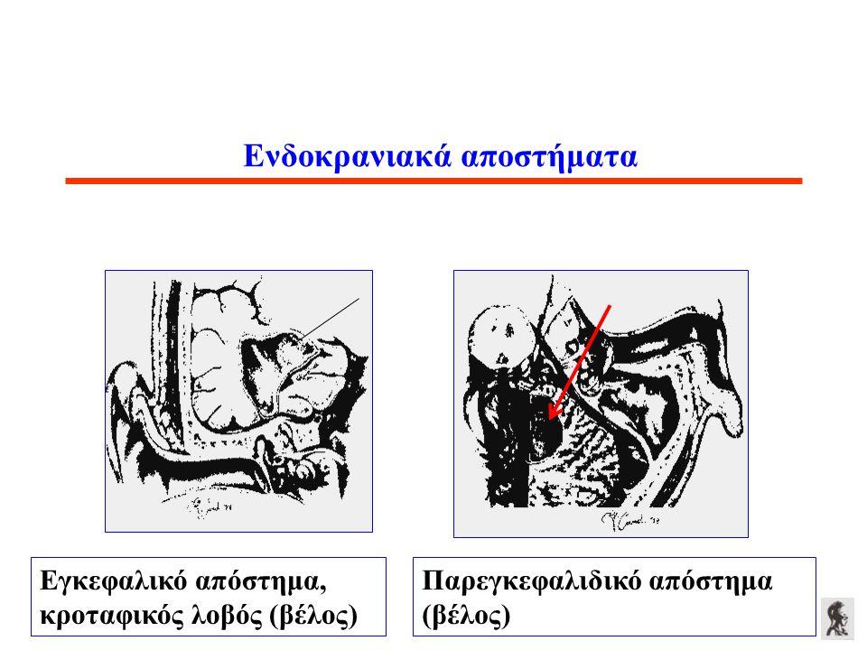 Ενδοκρανιακά αποστήματα Εγκεφαλικό απόστημα, κροταφικός λοβός (βέλος) Παρεγκεφαλιδικό απόστημα (βέλος)