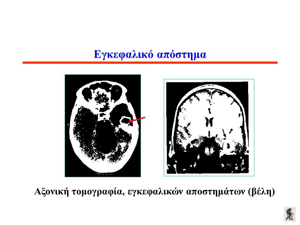 Εγκεφαλικό απόστημα Αξονική τομογραφία, εγκεφαλικών αποστημάτων (βέλη)