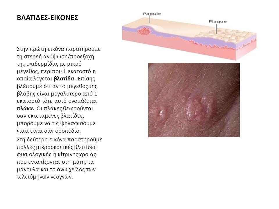 ΚΥΣΤΗ (PUSTULE) Η Κύστη είναι κοιλότητα που περιβάλλεται από τοιχώματα (μεμβράνη) και περιέχει υγρό ή σμήγμα.