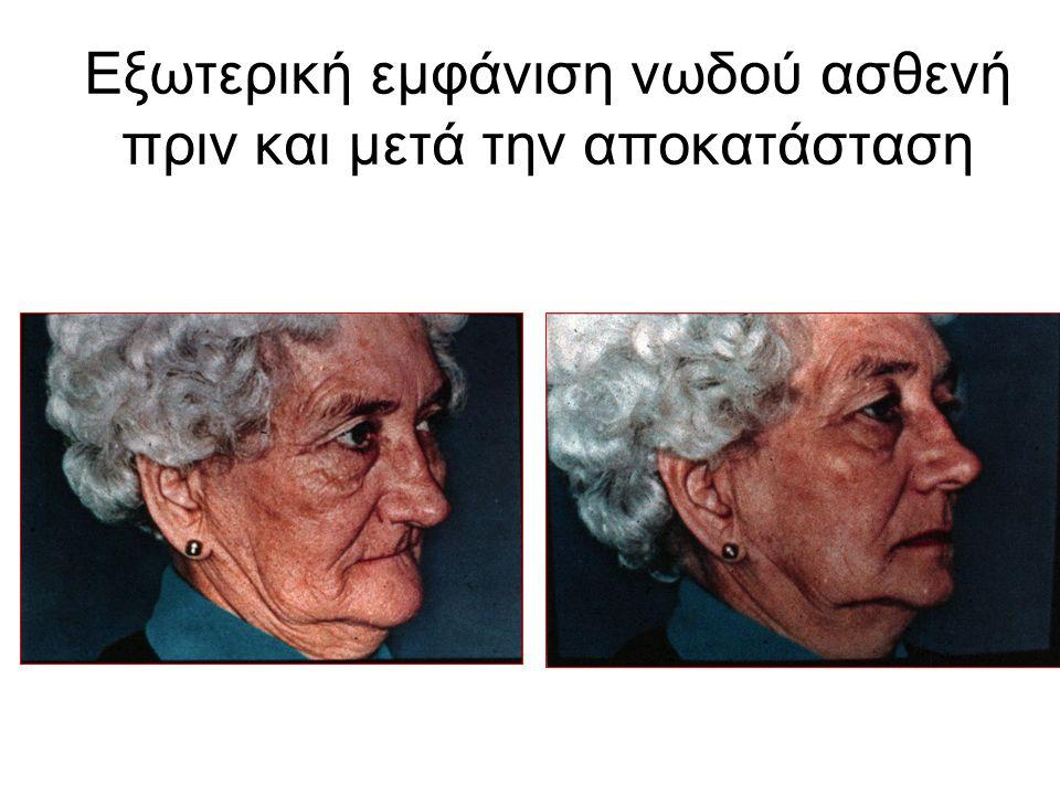 ΕΚΜΑΓΕΙΟ Αποτύπωμα Αποτύπωμα Γύψος Γύψος