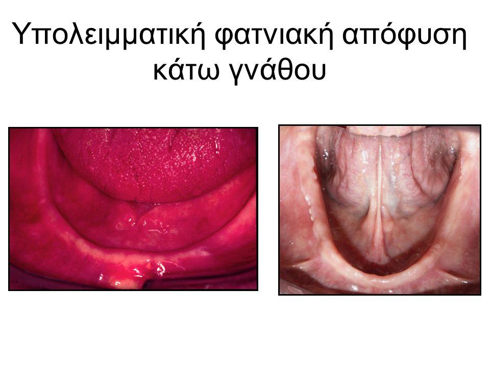 Υπολειμματική φατνιακή απόφυση κάτω γνάθου