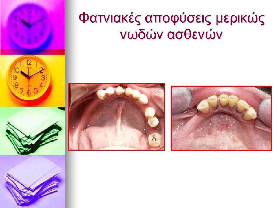Φατνιακές αποφύσεις μερικώς νωδών ασθενών