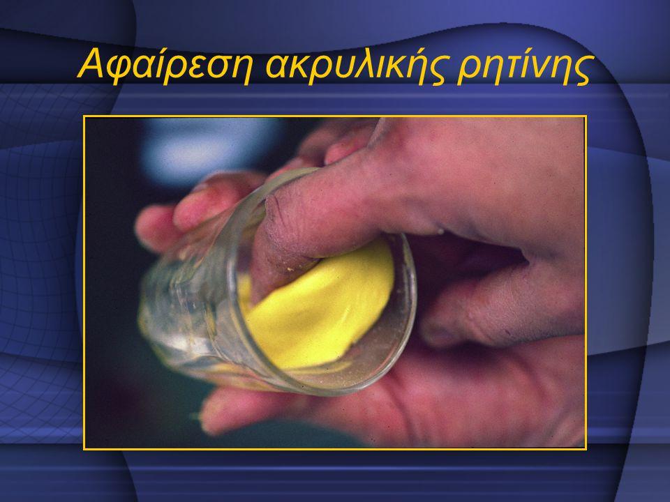 Αφαίρεση ακρυλικής ρητίνης