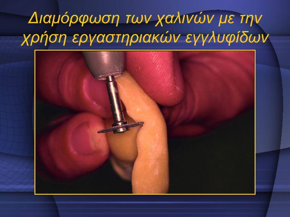 Διαμόρφωση των χαλινών με την χρήση εργαστηριακών εγγλυφίδων