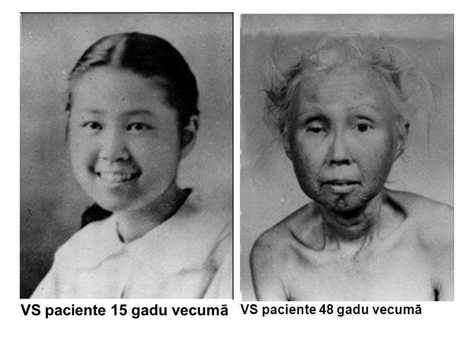 VS paciente 15 gadu vecumā VS paciente 48 gadu vecumā