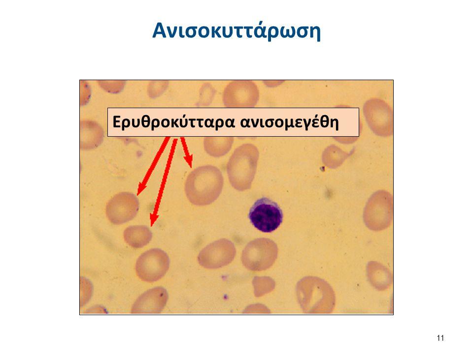 Ανισοκυττάρωση Ερυθροκύτταρα ανισομεγέθη 11