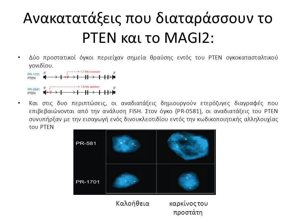 Ανακατατάξεις που διαταράσσουν το PTEN και το MAGI2: Δύο προστατικοί όγκοι περιείχαν σημεία θραύσης εντός του PTEN ογκοκατασταλτικού γονιδίου.
