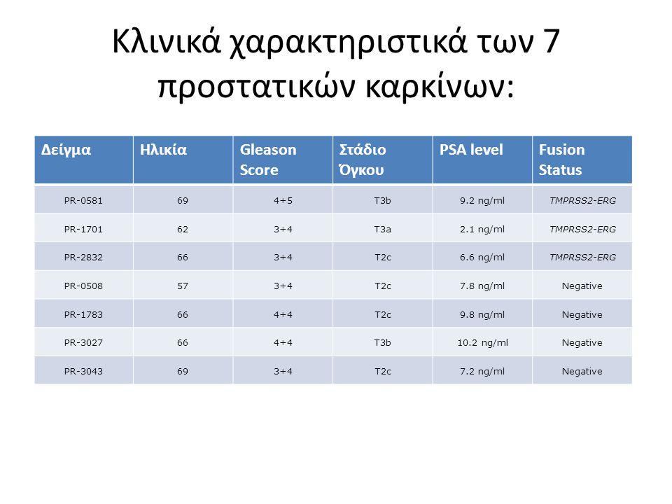 Κλινικά χαρακτηριστικά των 7 προστατικών καρκίνων: ΔείγμαΗλικίαGleason Score Στάδιο Όγκου PSA levelFusion Status PR-0581694+5T3b9.2 ng/mlTMPRSS2-ERG PR-1701623+4T3a2.1 ng/mlTMPRSS2-ERG PR-2832663+4T2c6.6 ng/mlTMPRSS2-ERG PR-0508573+4T2c7.8 ng/mlNegative PR-1783664+4T2c9.8 ng/mlNegative PR-3027664+4T3b10.2 ng/mlNegative PR-3043693+4T2c7.2 ng/mlNegative