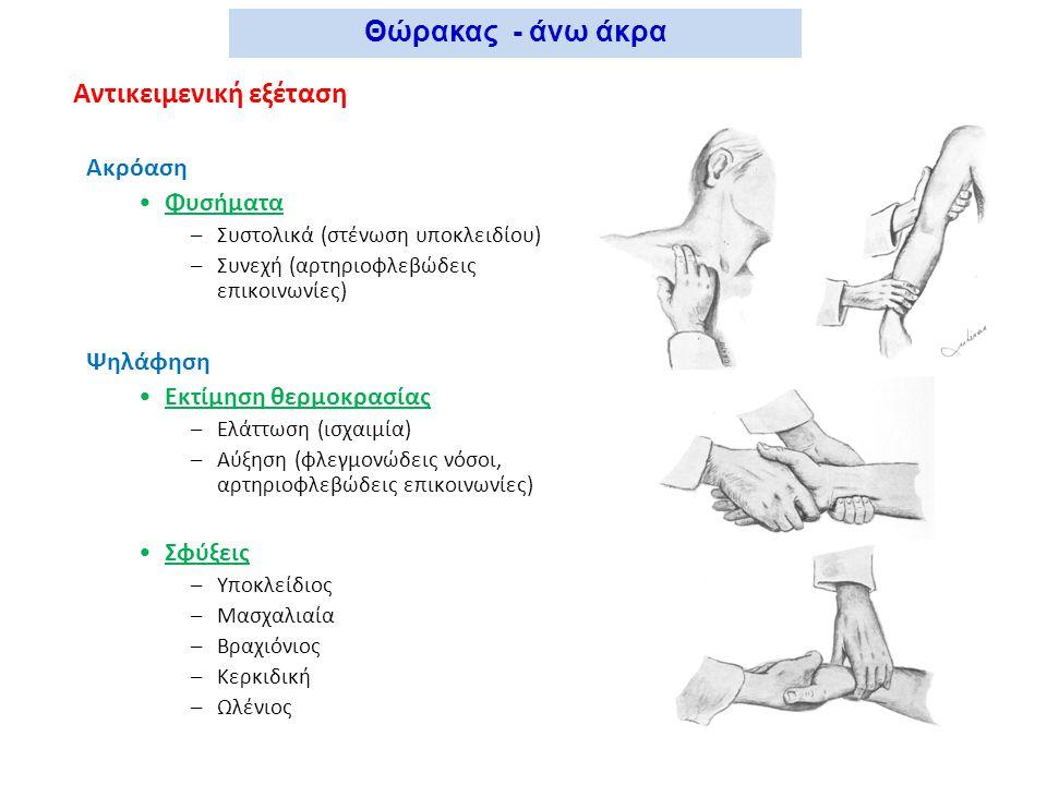 Αντικειμενική εξέταση Ακρόαση Φυσήματα –Συστολικά (στένωση υποκλειδίου) –Συνεχή (αρτηριοφλεβώδεις επικοινωνίες) Ψηλάφηση Εκτίμηση θερμοκρασίας –Ελάττω