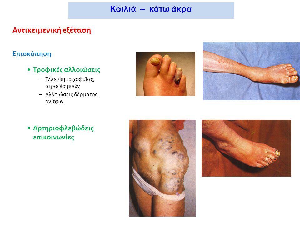 Αντικειμενική εξέταση Επισκόπηση Τροφικές αλλοιώσεις –Έλλειψη τριχοφυΐας, ατροφία μυών –Αλλοιώσεις δέρματος, ονύχων Αρτηριοφλεβώδεις επικοινωνίες Κοιλ