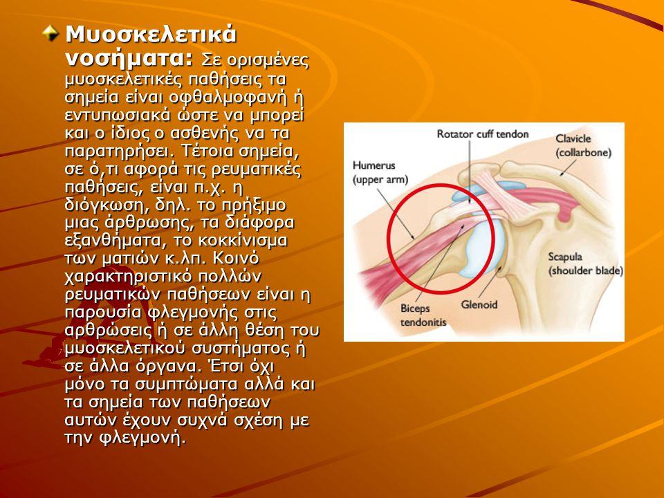 Μυοσκελετικά νοσήματα: Σε ορισμένες μυοσκελετικές παθήσεις τα σημεία είναι οφθαλμοφανή ή εντυπωσιακά ώστε να μπορεί και ο ίδιος ο ασθενής να τα παρατη